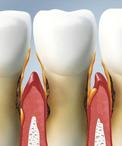 periodontal disease facts