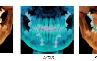 Dental implants fail 1