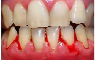 Bleeding gums at home 1