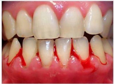 Bleeding gums at home 1