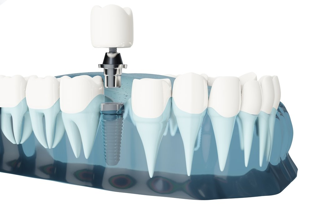 From dentures to dental implants