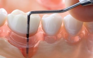 Periodontal Gum Disease