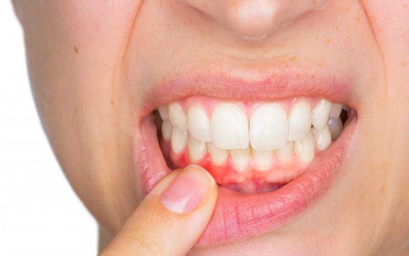 Periodontal Disease Gum Disease