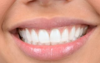 5 Tips to Healthy Gums