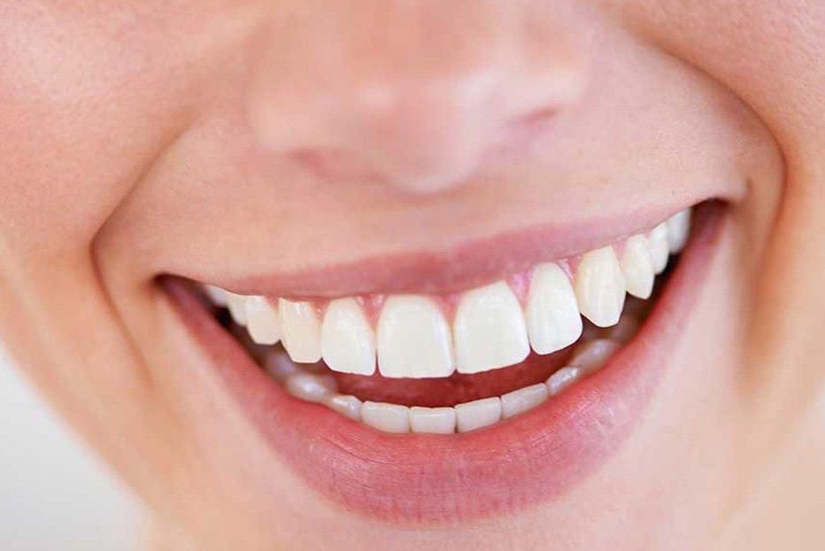 Can Gum Grafting Correct Receding Gums