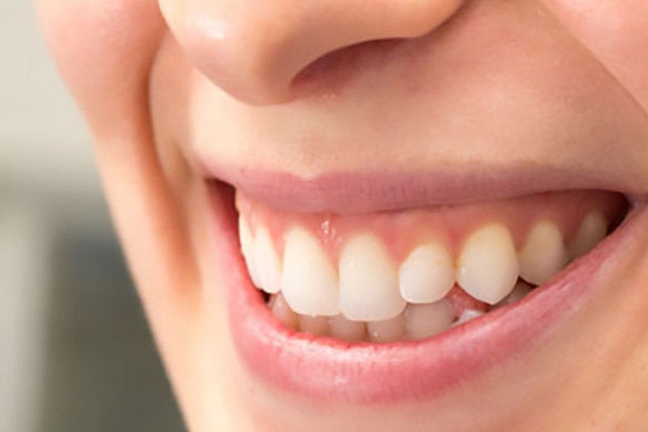 Treatments for Receding Gums